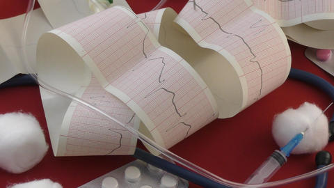 Electrocardiogram Of The Heart stock footage