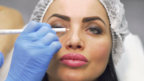 Beautician marks facial zones for future botox procedure Live Action