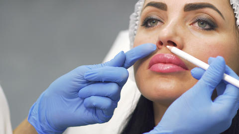 Doctor marks facial zones for botox procedure Live Action