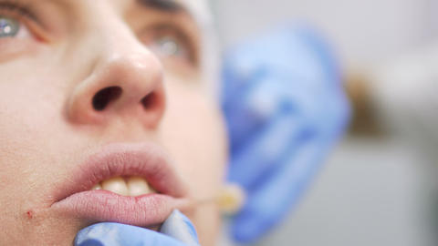 Botox injection of woman's lips Footage