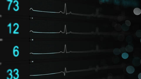 Medical monitor shows ECG seamless loop animation with DOF Animation