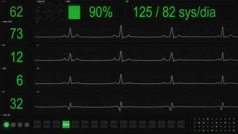 ECG testing software User Interface seamless loop animation Animación