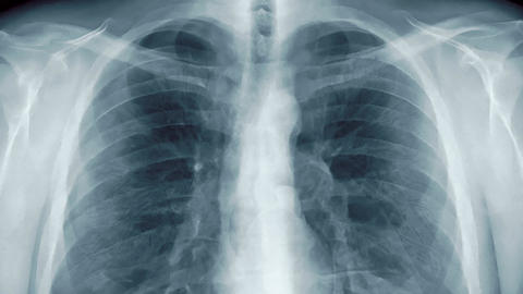 Chest x-ray with transparent lungs. (loop ready animation) CG動画素材