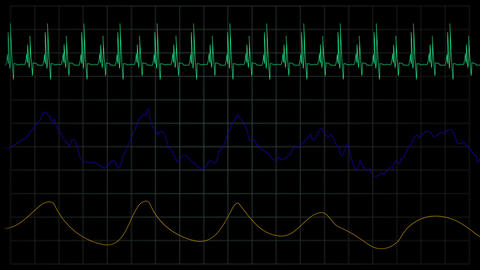simulation of heart rate medical machine Archivo