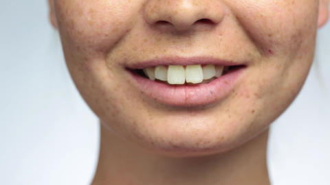 Beautiful woman with freckles, smiling close-up of lips and teeth, light Live Action