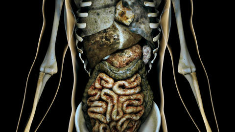 4K Sick Internal Organs in a Transparent Human Body Anatomical 3D Animation 2 Animation
