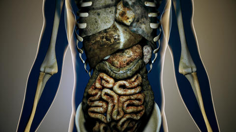 4K Sick Internal Organs in a Transparent Human Body Anatomical 3D Animation 4 Animation
