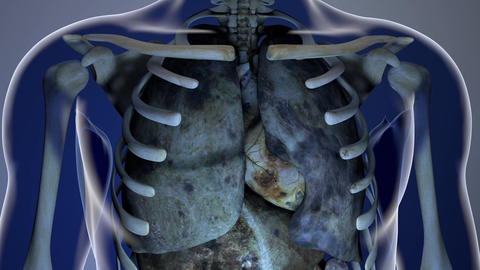 Sick Internal Organs in a Transparent Human Body Anatomical 3D Animation 1 Animation