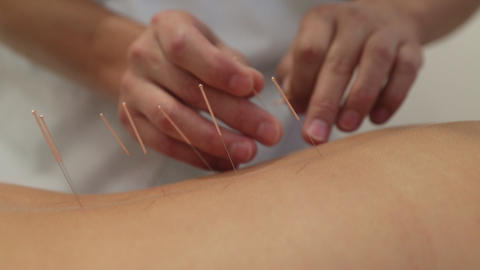 Treatment by Acupuncture Footage