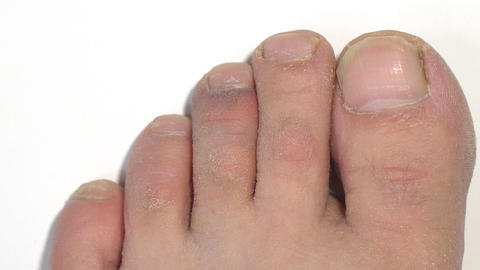 The bruise on the toe Live Action