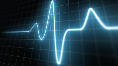 Stylized EKG Normal, Blue Animation