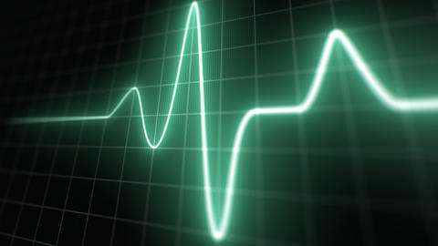 Stylized EKG Normal, Green Animation