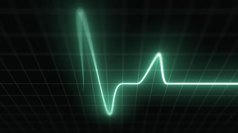 Stylized EKG Fast, Green Animation