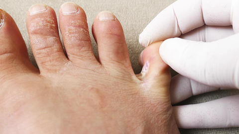 toes health, fungal diseases in the fingers, itchy fungal diseases Footage