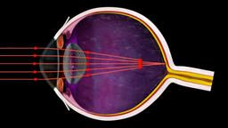 How the Iris Controls Light Entering the Eye - 3D Medical Animation Eye Footage