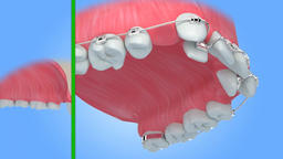 Teeth with braces alignment process. Medically accurate 3D animation Animation