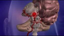 Aneurysm of Cerebral Artery - 3D Medical Animation Animation
