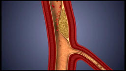 Clogged Artery with platelets and cholesterol plaque Animation
