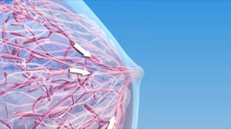 Breast Cancer - 3D Medical Animation Animation
