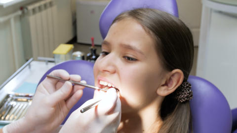 Closeup 4k footage of dentist in latex gloves inspecting girl's mouth Footage