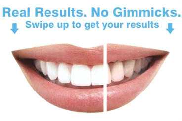 Teeth cleaning After Effects Template