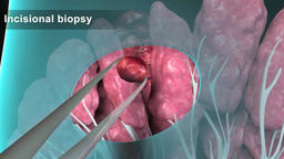 Breast incisional Biopsy Footage
