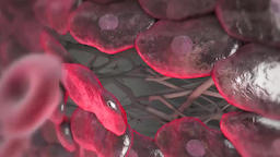 Atherosclerosis Causes Heart Attack Footage