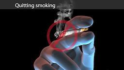 quitting smoking.Digital animation Footage
