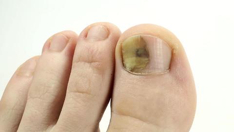 Sick nail. Fungus of big toe. Separation of the nail from the nail bed Footage