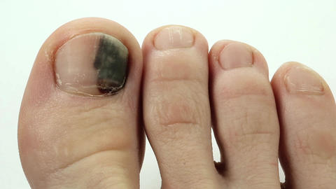 Bruise under the nail of big toe Footage