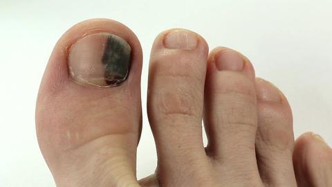 Subungual hematoma. Bruise under the nail of big toe Footage