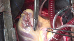 Surgeon sews up heart during operation on live organ of person in clinic Footage