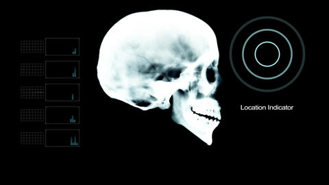 Skull Profile Under X- Ray with other Elements Live Action