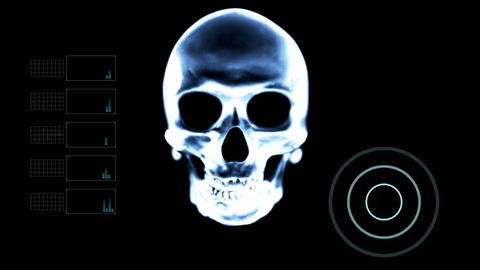 Scanning Skull Under X- Ray with other Elements Live Action