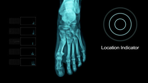 Biometric Scanning Foot Under X- Ray with other Elements Live Action