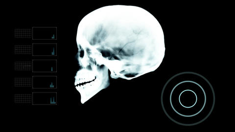 Biometric Scan Skull Profile Under X- Ray with other Elements Live Action