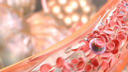 Metastasis for cancer that spreads to a different part of the body from where it Footage