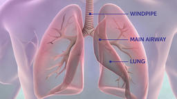 transparent man lung cancer Footage