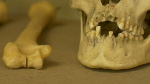 Old Human Skull Teeth ビデオ