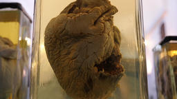 Real broken heart due to a massive heart attack. Zoom in shot Footage