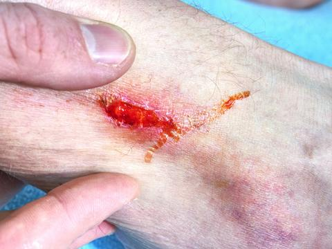 Embracing injured leg with painful place. Doctor hand healing bloody body フォト