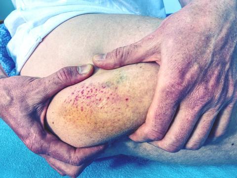 Fresh bruise on white skin. Painful green purple huge bruise on leg フォト