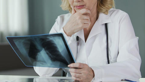 Senior physician looking at lung x-ray at hospital, healthcare and medicine Live Action