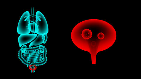Human Male Organs X-ray set, Bladder infection concept idea red color 애니메이션