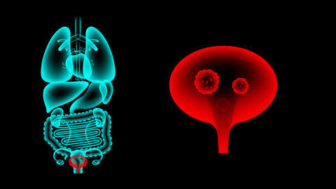 Human Female Organs X-ray set, Bladder infection concept idea red color 애니메이션