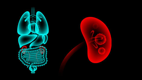 Human Male Organs X-ray set, Kidney infection concept idea red color Animación