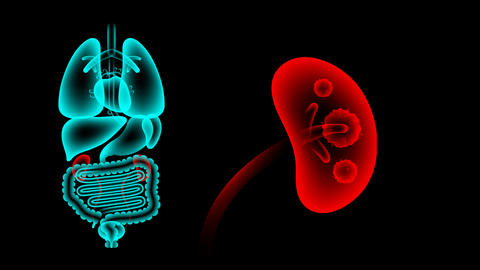 Human Male Organs X-ray set, Kidney infection concept... Stock Video Footage
