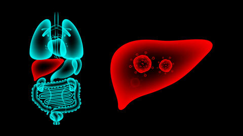 Human Male Organs X-ray set, Liver infection concept idea red color illustration Animation