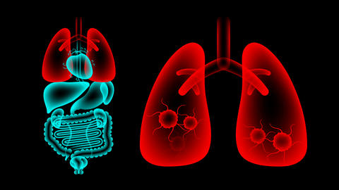 Human Male Organs X-ray set, Lung infection concept idea red color illustration Animation