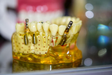 Transparent Model of Human Teeth フォト